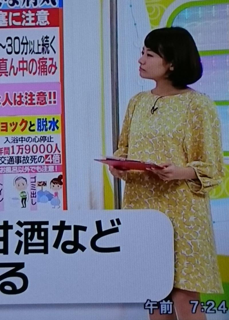 2016.12.19 ふゆなのにミニスカート - 金沢歩さん (3) 800-1120