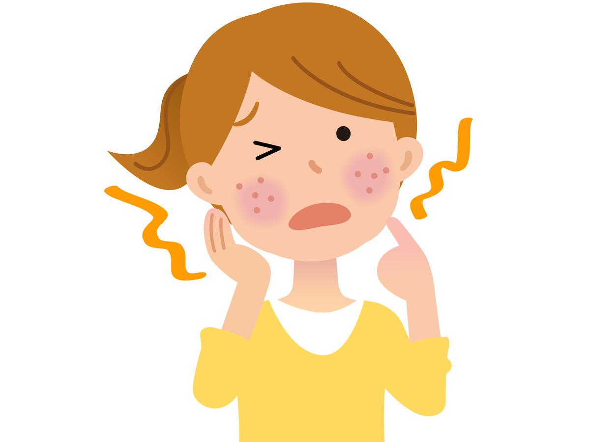 マスクアレルギーの症状