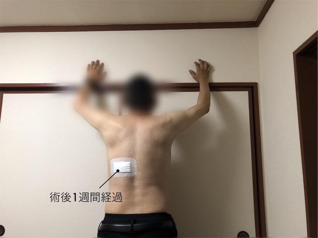 f:id:usakohiroshi242:20180912214916j:image