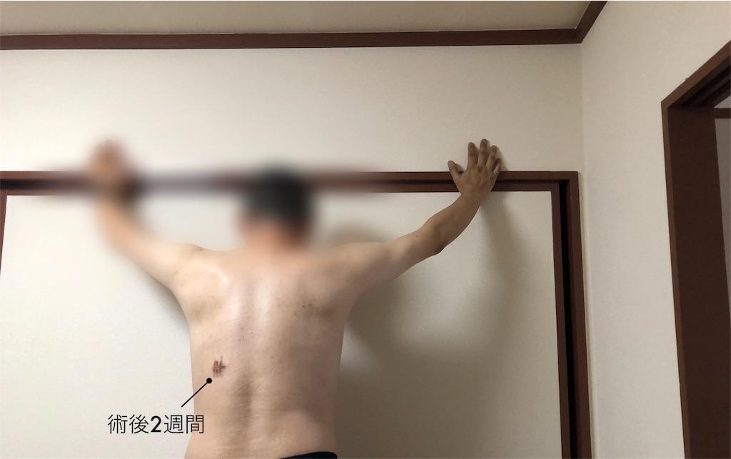 f:id:usakohiroshi242:20180912214924j:image