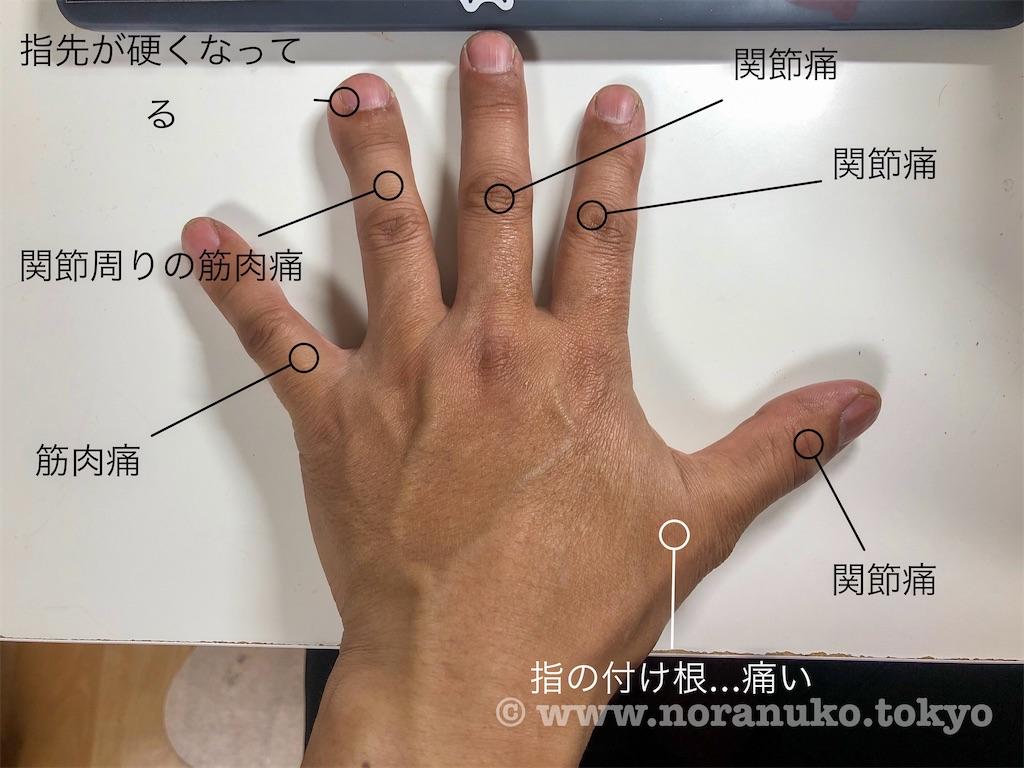 f:id:usakohiroshi242:20200324181946j:image