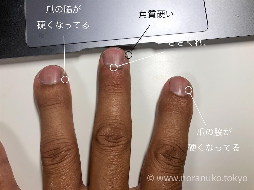 f:id:usakohiroshi242:20200620212841j:plain
