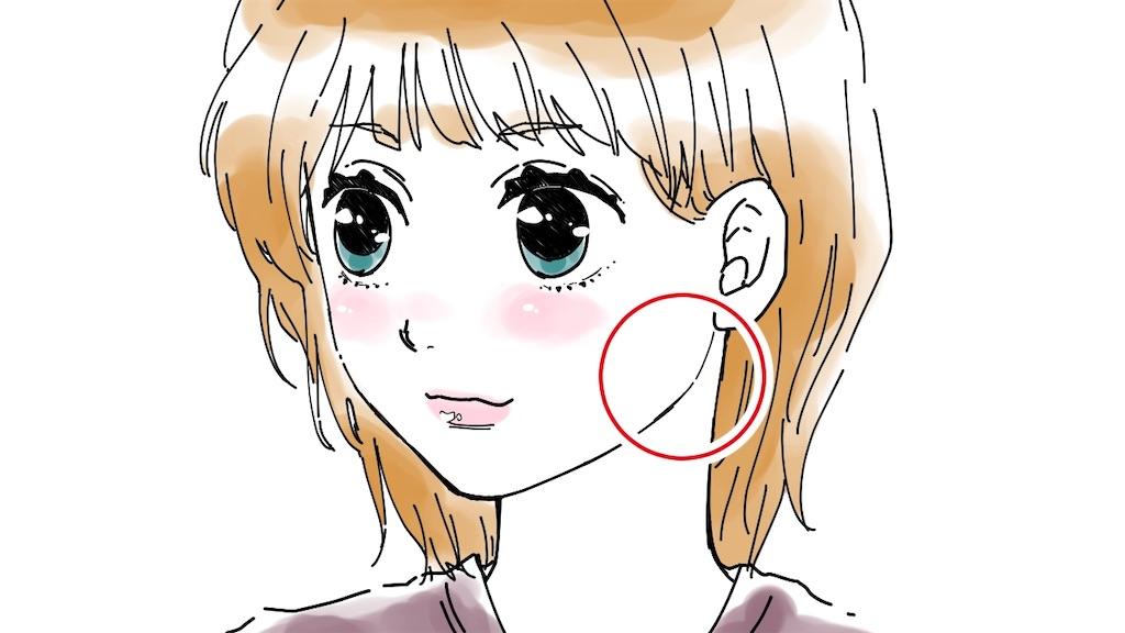 エラ部分を赤丸で囲って示したイラスト