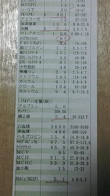 f:id:ushio-salt:20180822224659j:plain