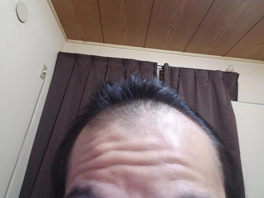 AGA治療中の前頭部の写真