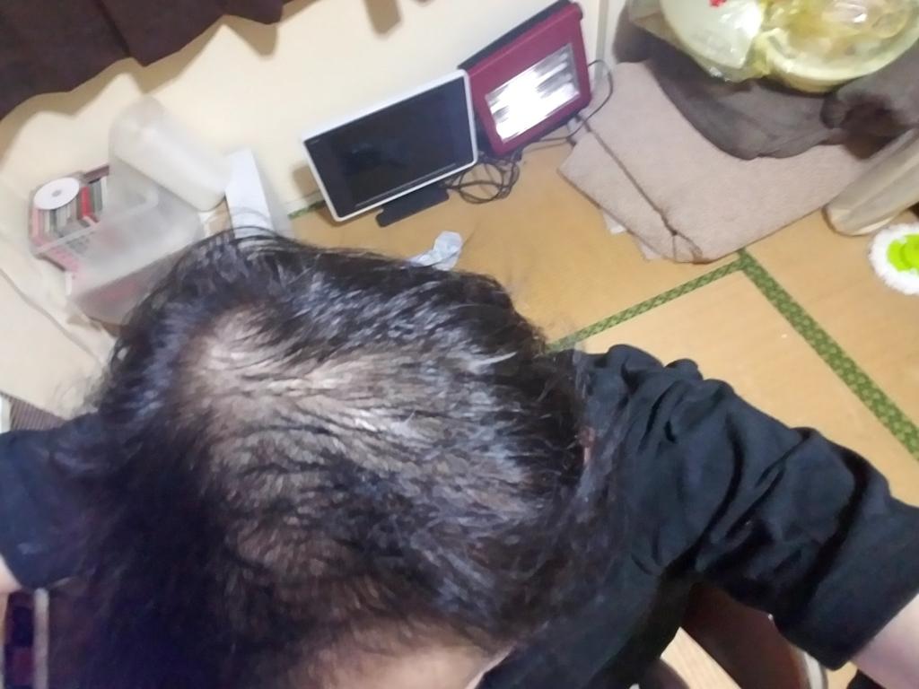 AGA治療から2ヶ月の頭頂部の状態
