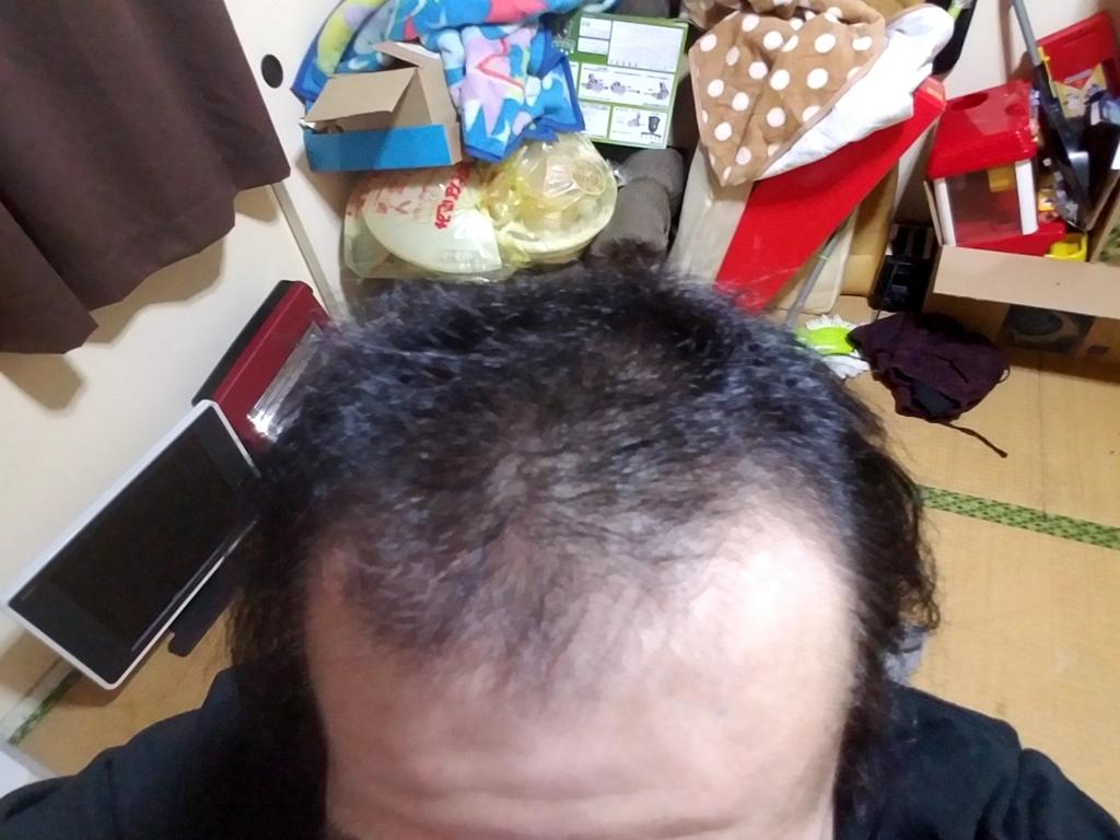 前頭部の薄毛の様子