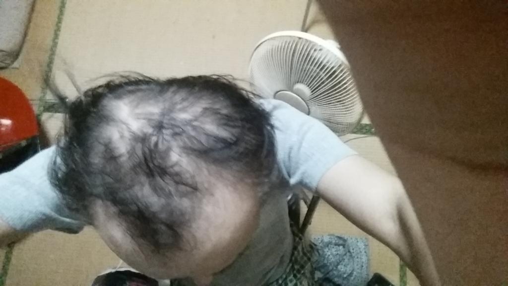 AGA治療前の髪の毛の状態