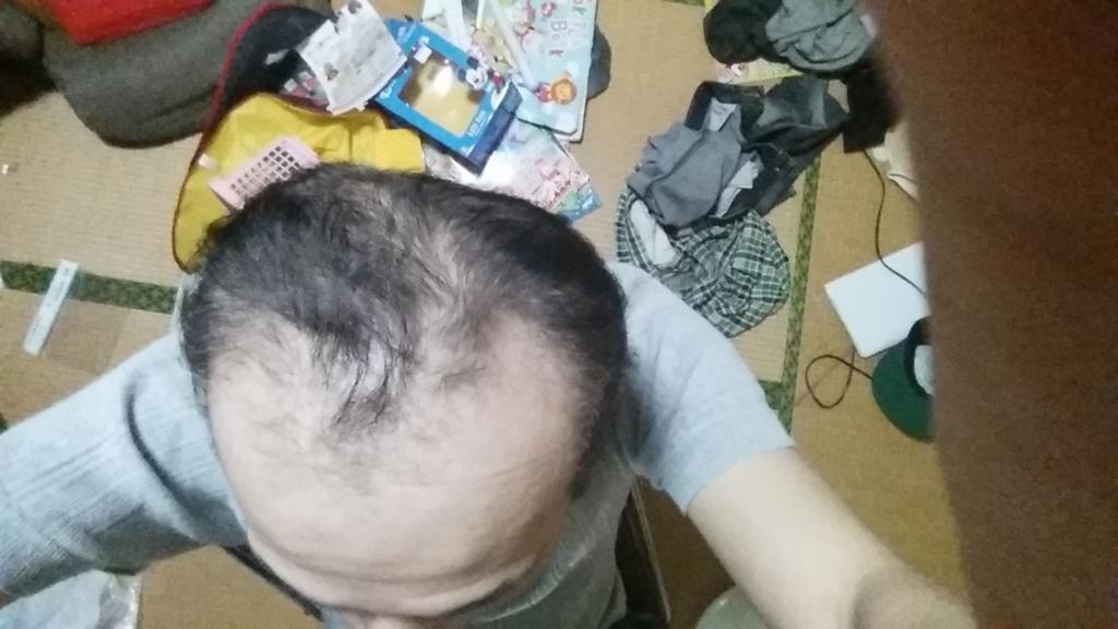 AGA治療開始前のハゲ頭
