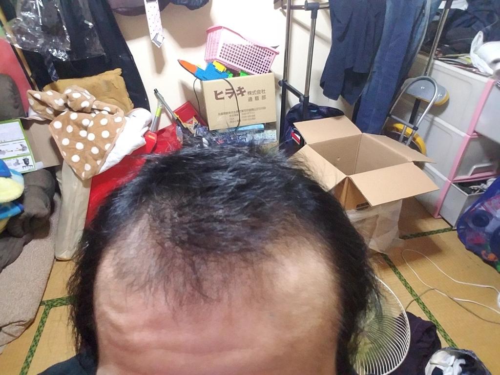 AGA治療開始から1年1ヶ月目の頭