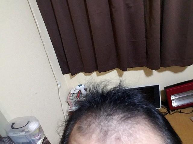 薄毛治療中の写真