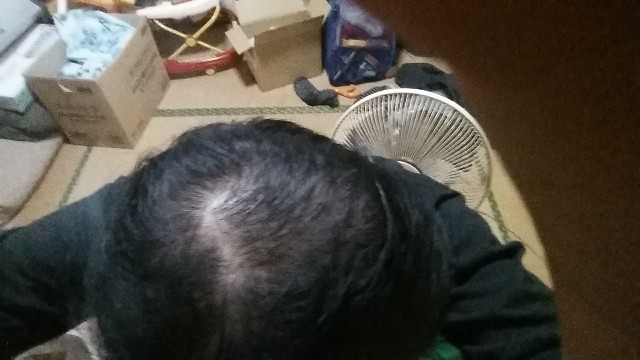 AGA治療開始から3ヶ月の頭頂部