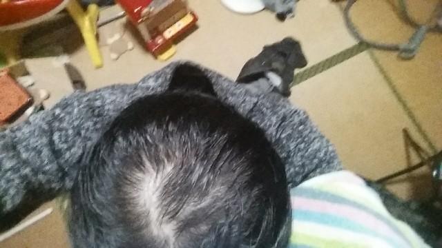 AGA治療開始から6ヶ月の頭頂部