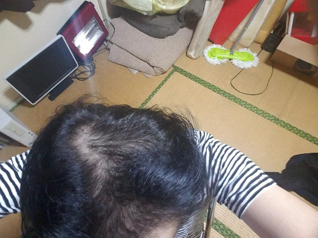 AGA治療開始から11ヶ月経過の頭頂部