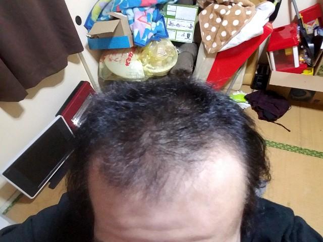 AGA治療開始から11ヶ月経過の前頭部