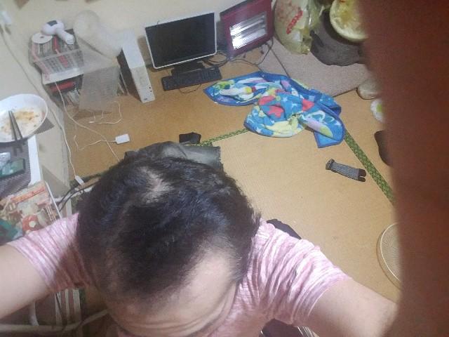 AGA治療開始から1年2ヶ月の頭頂部を斜めから撮影