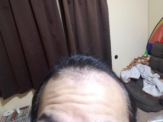 薄毛治療から1年4ヶ月後の頭