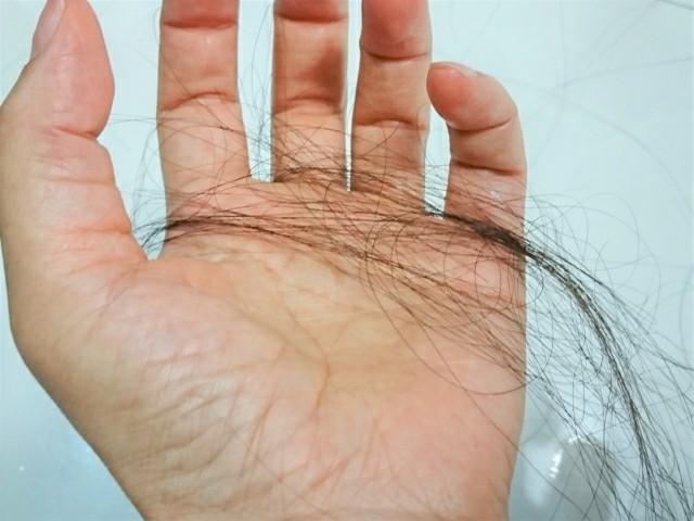 ば大量の抜け毛の写真