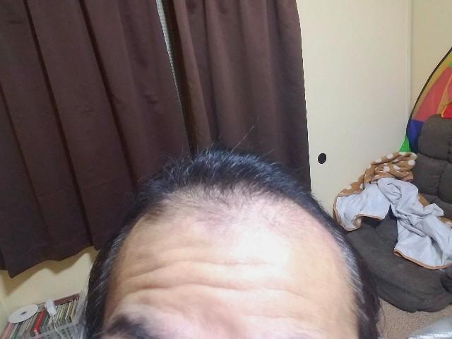 フォリックスFR15を使用する前の髪の状態