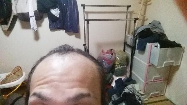 薄毛末期の前頭部の写真