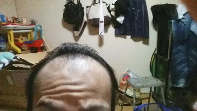 AGA治療から3ヶ月経過した前頭部の状態