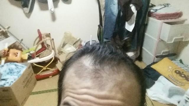 AGA治療開始から6ヶ月経過した前頭部の状態