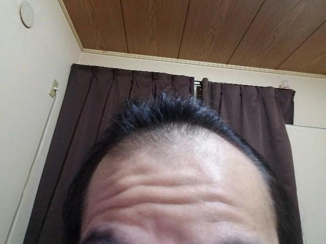 AGA治療開始から1年経過した前頭部の状態