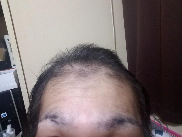 AGA治療開始から1年6ヶ月経過の前頭部の状態