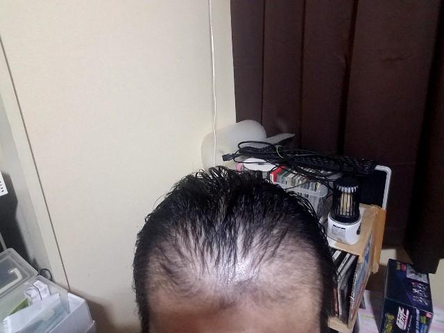 薄毛治療経過