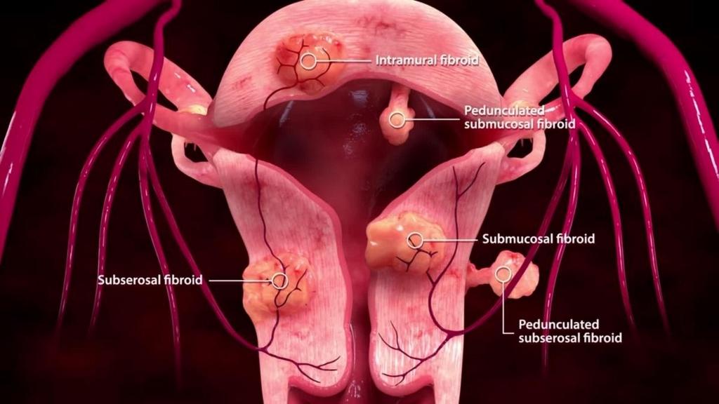 f:id:uterinefibroids:20171007162644j:plain