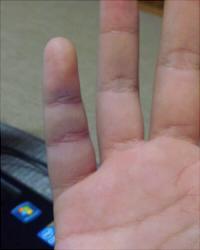 突き指 青い