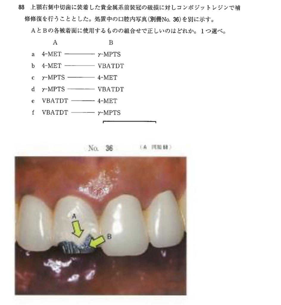 f:id:v33-MDDT:20210715074141j:image