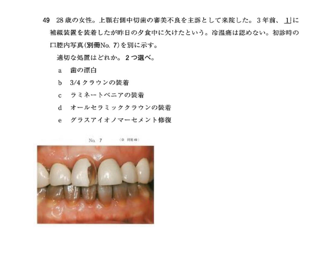 f:id:v33-MDDT:20210804081648j:image