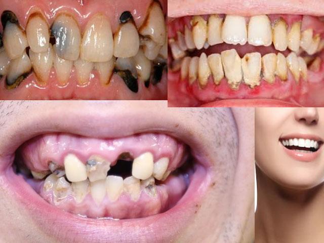 口腔内が汚れている人は臓器も同じような状態