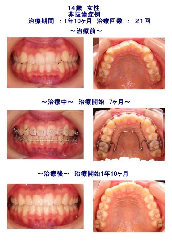 f:id:wadaortho:20120807193541j:image:w640