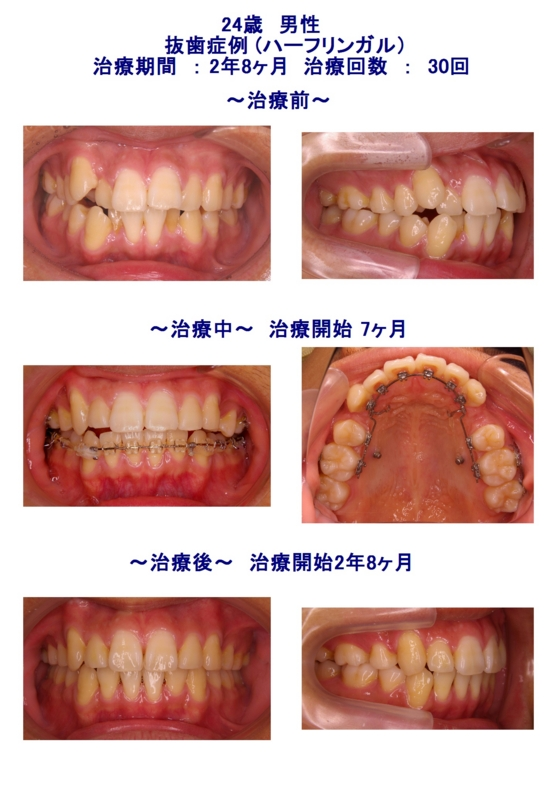 f:id:wadaortho:20120913154900j:image