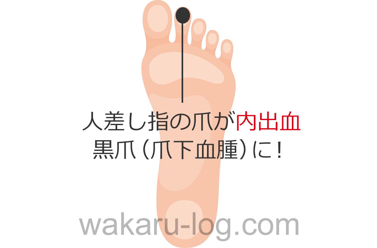 f:id:wakaru-web:20200905075700p:plain