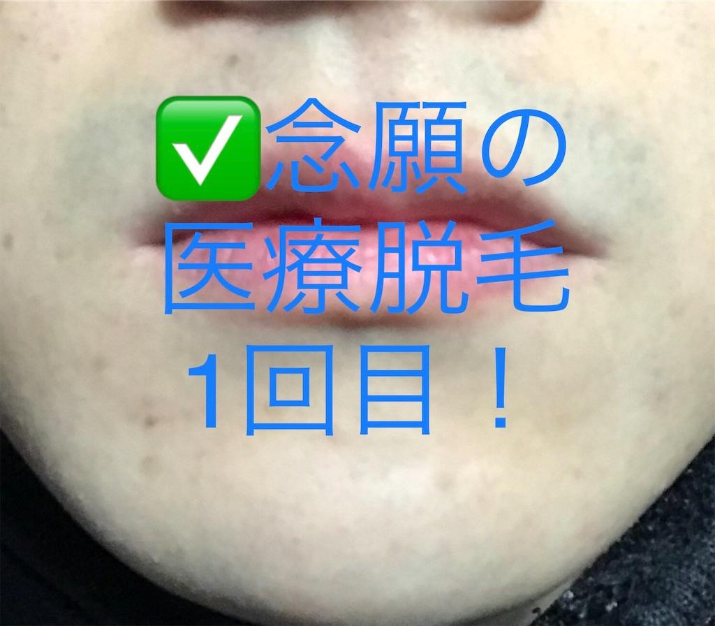f:id:wakuwakusan_b:20190107214205j:image