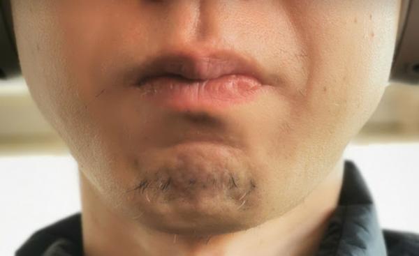 筆者の髭と顎の写真
