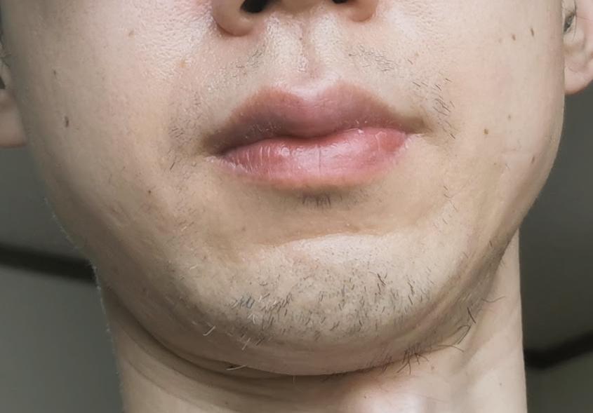 鼻から下アゴまでの髭