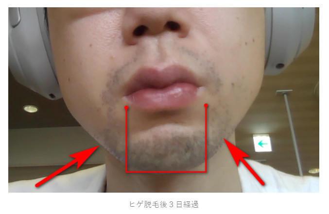 髭の頬の部分
