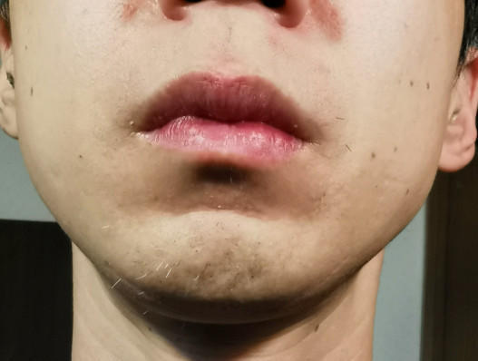 11回目から1ヶ月経過の鼻下とアゴ