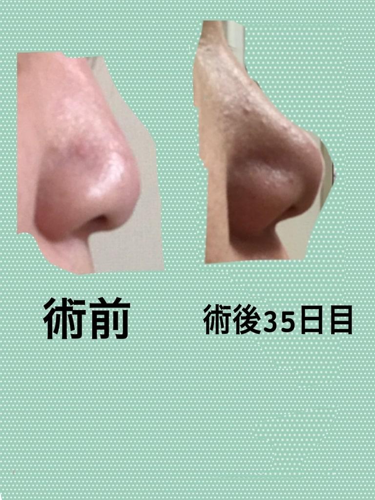 f:id:wasimo:20190323142717j:plain