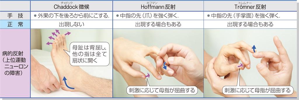 f:id:web-shikentaisaku:20201024153309j:image
