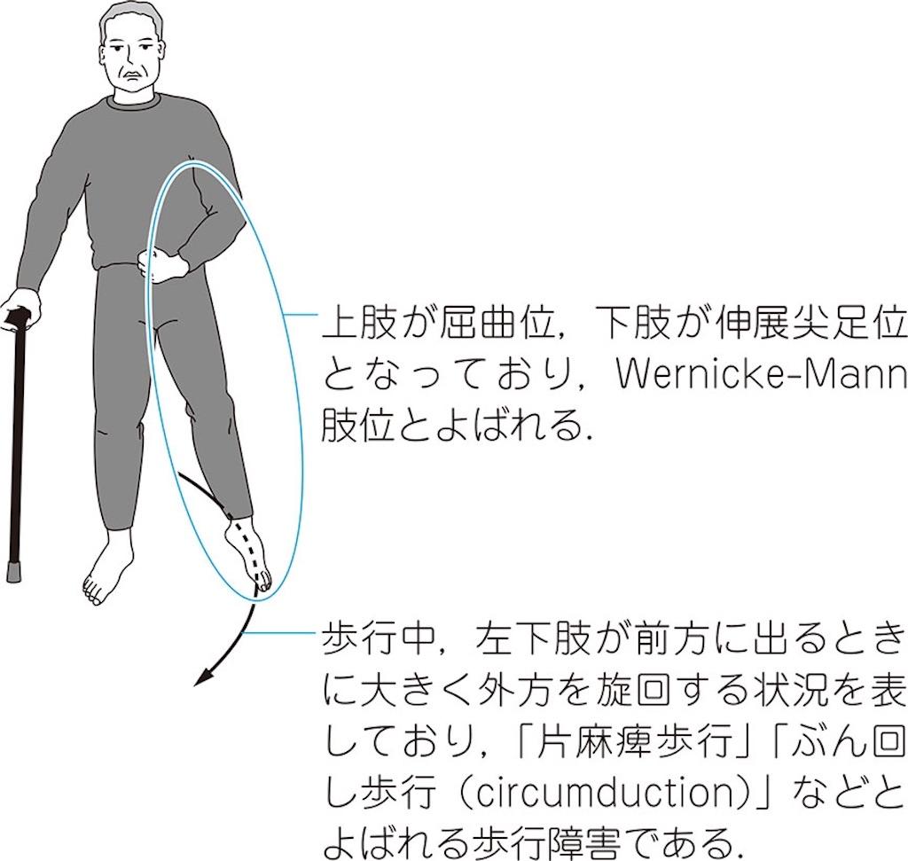 f:id:web-shikentaisaku:20201103144041j:image