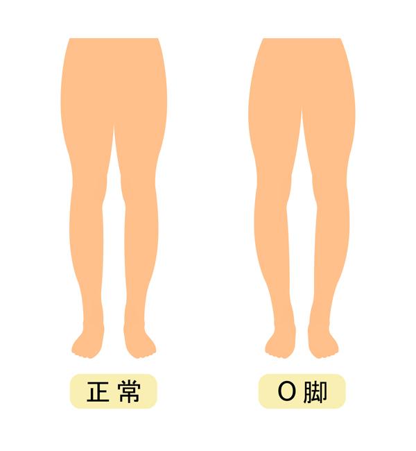 O脚の進行度合