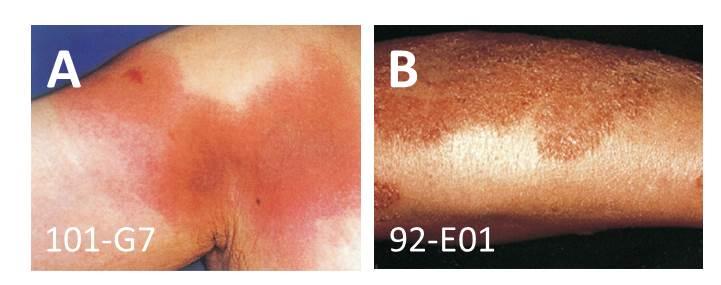 医師国家試験皮膚科領域の解答の図