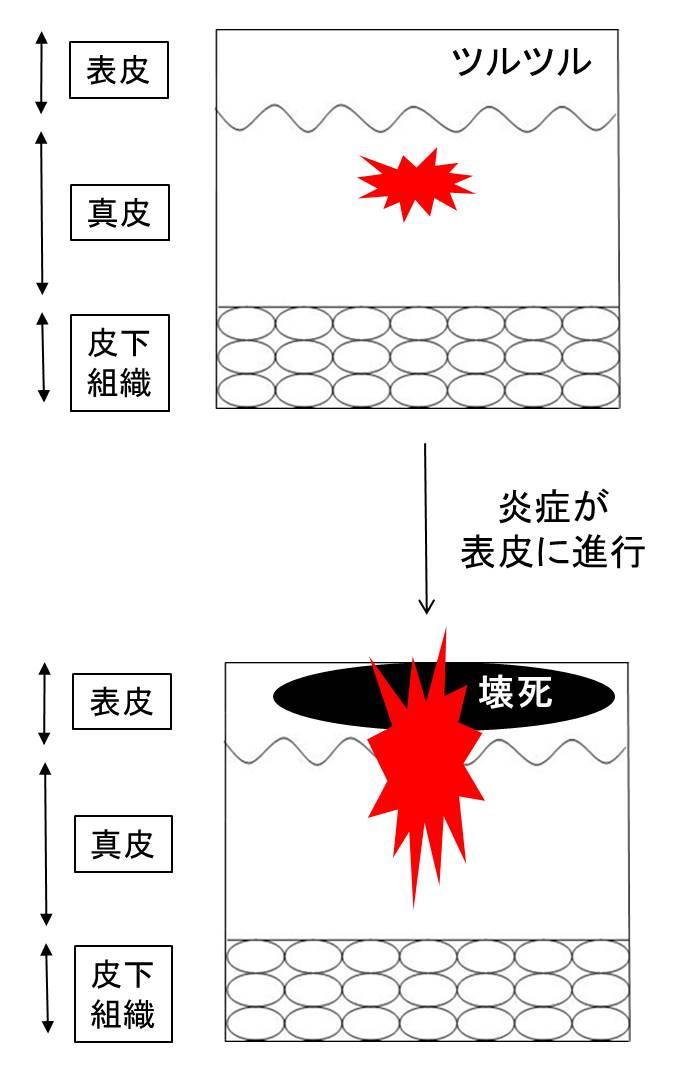 医師国家試験薬疹の図