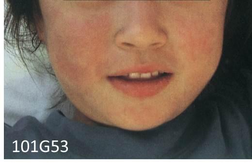 医師国家試験皮膚筋炎の図