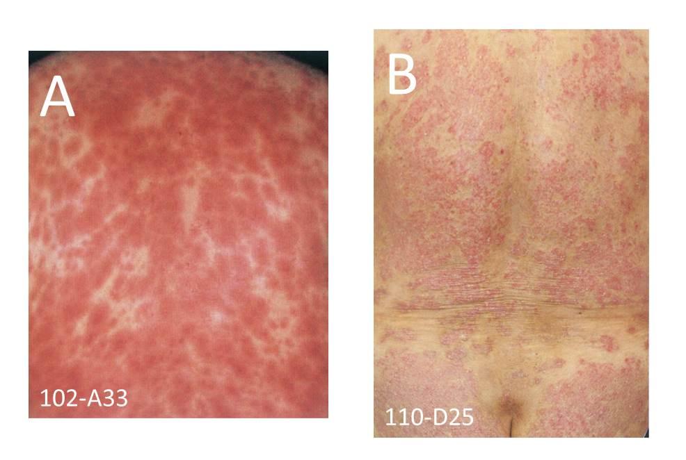 医師国家試験乾癬と薬疹の比較